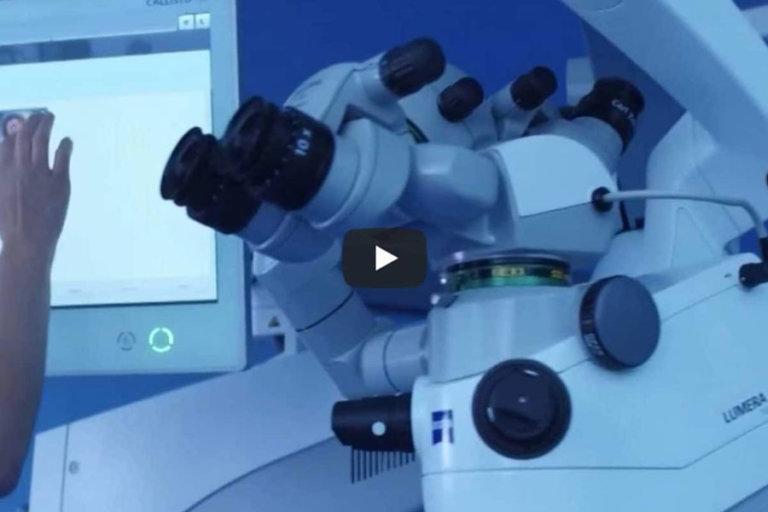 Bowman-Layer-Transplantation mit Hilfe des Femto-Lasers